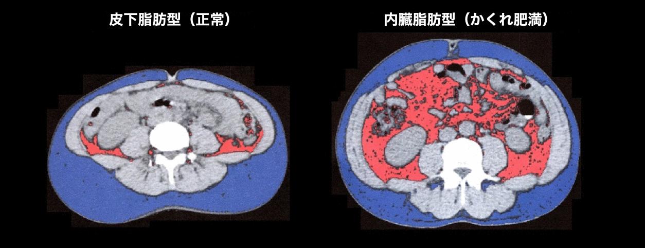 CT体脂肪検査
